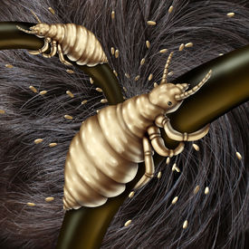 picture of parasite  - Lice in hair problem as a medical concept with a macro close up of a human head with an infestation of parasitic nits or eggs hatching from a louse insect as a symbol of infection and treatment - JPG