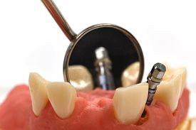 image of overbite  - metal dental implant and oral mirror close up - JPG