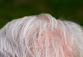 foto of scalping  - Gray hair thinning on senior man scalp - JPG
