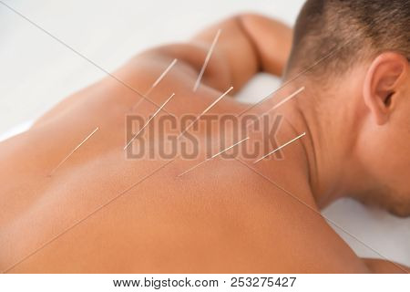 poster of Young Man Undergoing Acupuncture Treatment In Salon, Closeup
