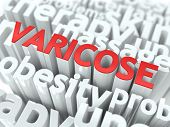 stock photo of varicose  - Varicose  - JPG
