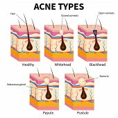 Acne Types. Pimple Skin Diseases Anatomy Medical Vector Diagram. Illustration Of Follicle And Pimple poster