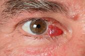 stock photo of hemorrhage  - Close up of human eye with hematoma