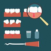 picture of pus  - Illustration showing gum disease in a flat style of minimalism - JPG