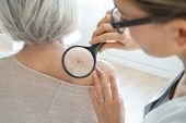 Senior woman getting skin checked by dermatologist                                poster