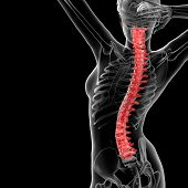 pic of herniated disc  - 3d rendered illustration of the female Vertebral column  - JPG