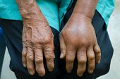 image of septic  - left hand inflammation from the green pit viperb snake bite - JPG