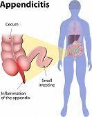 stock photo of appendicitis  - Appendicitis is inflammation of the appendix - JPG