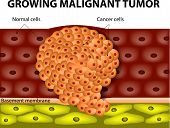 stock photo of membrane  - Cancer cells in a growing malignant tumor - JPG