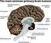 stock photo of nerve cell  - different types of brain tumors - JPG