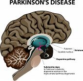 stock photo of section  - Parkinson - JPG