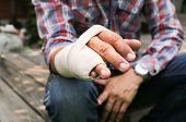 stock photo of orthopedic surgery  - Splint broken bone hand Injured in blur background - JPG