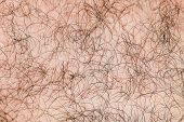 Body Hair Close-up. Hairy Background. Fragment Of Human Hair Covering The Pink Skin. poster
