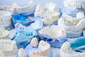 stock photo of dental impression  - Denture and implant production - JPG