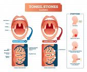 Tonsil Stones Vector Illustration. Labeled Medical Tonsillolith Symptoms Scheme. Healthy Respiratory poster