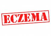 stock photo of scalping  - ECZEMA red Rubber Stamp over a white background - JPG