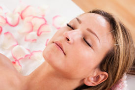 image of forehead  - Woman undergoing acupuncture treatment with a line of fine needles inserted into the skin of her forehead - JPG