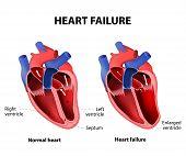 Постер, плакат: Heart Failure