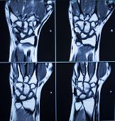stock photo of mri  - MRI magentic resonance imaging nuclear scanning scan test results wrists hands injury photo.