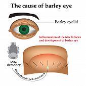 picture of mites  - Diseases of the eye barley - JPG
