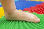 Treatment And Prevention Of Flat Feet In Children. A Small Child Walks Barefoot On An Orthopedic Mat poster