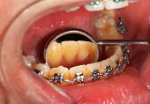 stock photo of overbite  - Picture of a dental brace examination at a clinic - JPG