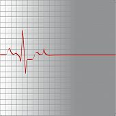 picture of flatline  - grid with heart beat and then flatline  - JPG