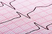 picture of electrocardiogram  - cardiogram (aka electrocardiogram aka ECG) of heart beat on red paper