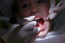 stock photo of prophylactic  - Little girl at paediatric dentists office getting her teeth polished with prophylactic paste by her dentist - JPG
