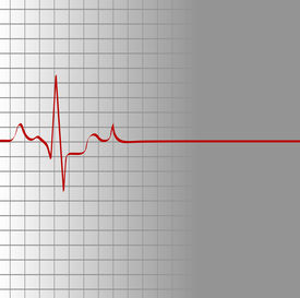 image of flatline  - grid with heart beat and then flatline  - JPG