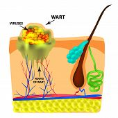 The Structure Of The Wart. The Structure Of The Skin. Infographics. Illustration On Isolated Backgro poster