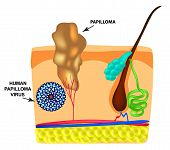 Human Papilloma Virus Causes The Formation Of Papillomas On The Skin. Structure. Infographics. Illus poster