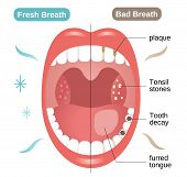 Bad And Fresh Breath Before And After Illustration. Oral Care Concept poster