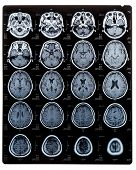 Brain Scan Image On Magnetic Resonance Imaging (mri) Film Of Elderly Patient Isolated (clipping Path poster