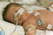 stock photo of premature  - Premature baby boy delivered by Caesarean section in Neo Natal Intensive Care Ward at Hospital - JPG