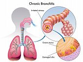 stock photo of respiratory disease  - medical illustration of the effects of the chronic bronchitis - JPG