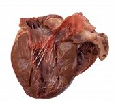 Section throug swine heart