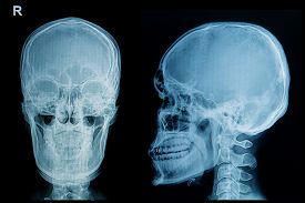stock photo of skull  - skull x - JPG