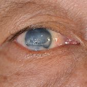 picture of cataract  - Close up of the phthisis bulbi during eye examination - JPG