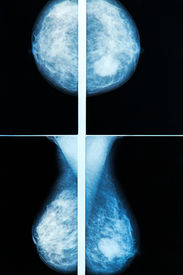 picture of mammography  - Female mammography breast scan X - JPG