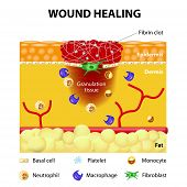 stock photo of scabs  - The wound healing process - JPG
