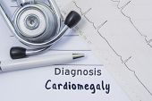 Diagnosis Of Cardiomegaly. Stethoscope, Printed Electrocardiogram And Pen Are On Paper Medical Form  poster