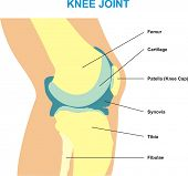 Knee Joint Cross Section - Showing the major parts which made the knee joint (Femur, Cartilages, Pat
