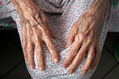 picture of charity relief work  - Hands of the elderly woman - JPG
