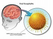 pic of rabies  - medical illustration of the virus of viral encephalitis - JPG