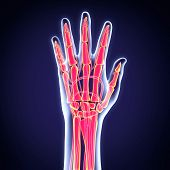 image of gout  - Human Hand Anatomy Illustration  - JPG