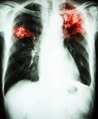 picture of tuberculosis  - film chest x - JPG