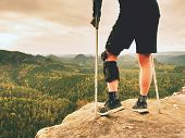 Man With A Crutches And Broken Leg Fixed In Knee Brace Feature.traveler With Hurt Leg In Bandages poster