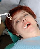 Woman With Open Mouth Look On Her Extract Tooth