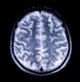 foto of magnetic resonance imaging  - Snapshot of the brain in cross section in magnetic resonance imaging - JPG